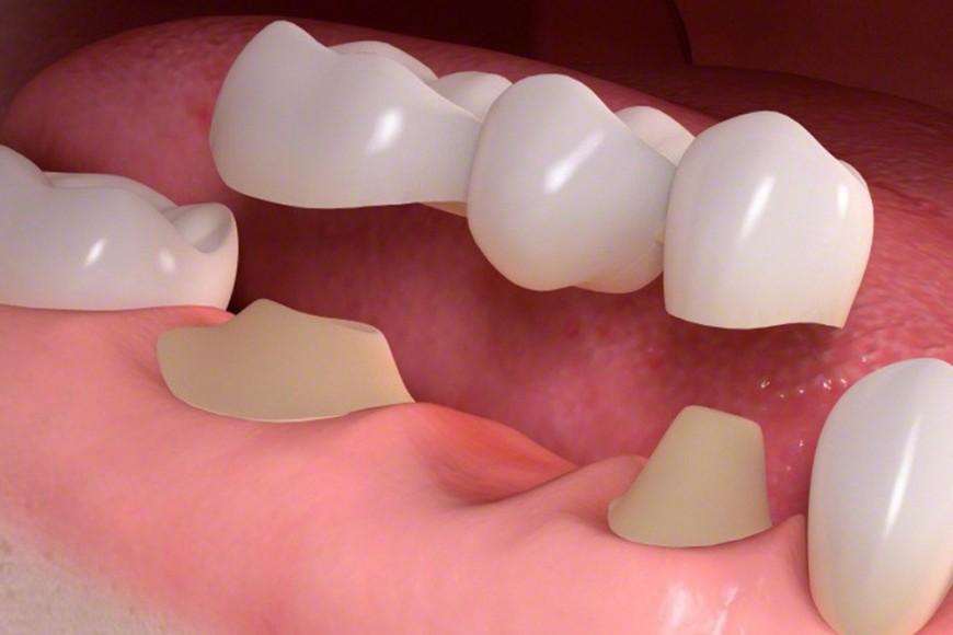 Cosa sono i Ponti dentali e come funzionano?