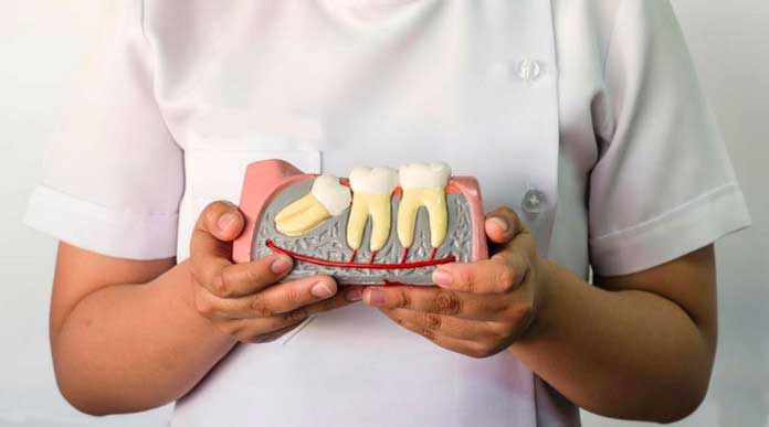 La rimozione dei Denti del Giudizio