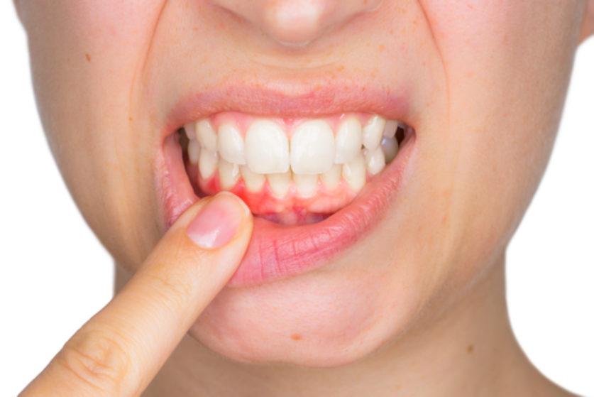 La Gengivite: come Prevenirla o come Curarla